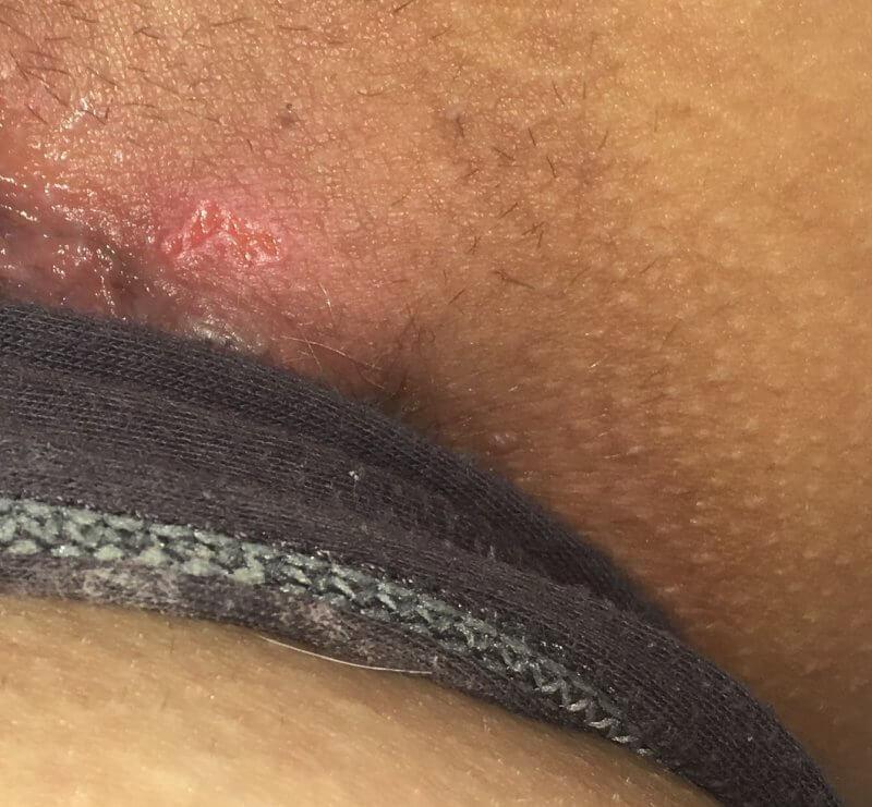 online přítel vaginální