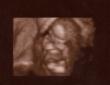 13. týden těhotenství Barborka 13tt
